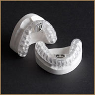 dental sleep apnea appliance